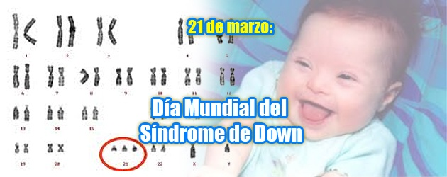 sindrome-down