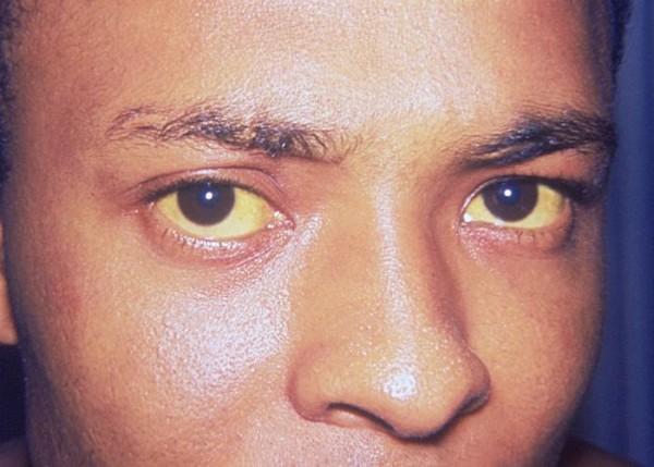 Jaundice_eye