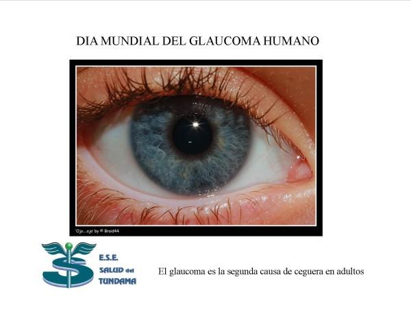 glaucomajpg.jpg10