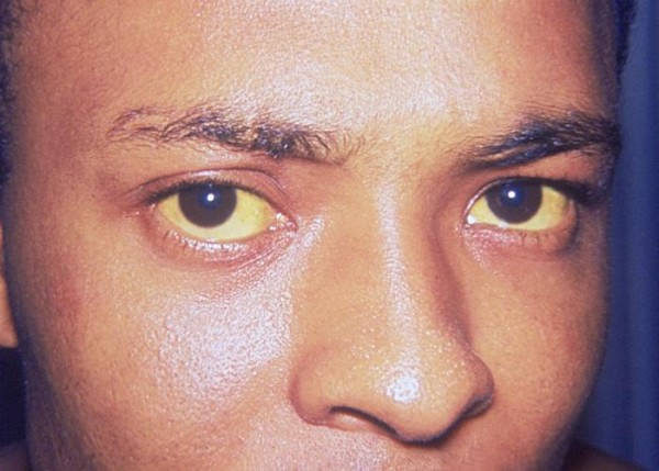 Jaundice_eye