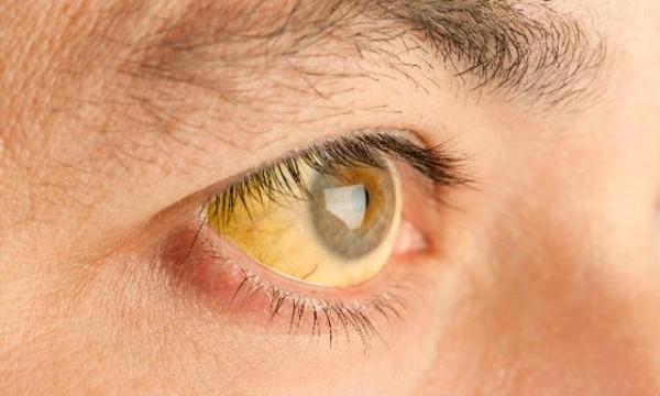 imagen-hepatitis