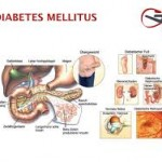 Imagenes de la enfermedad diabetes