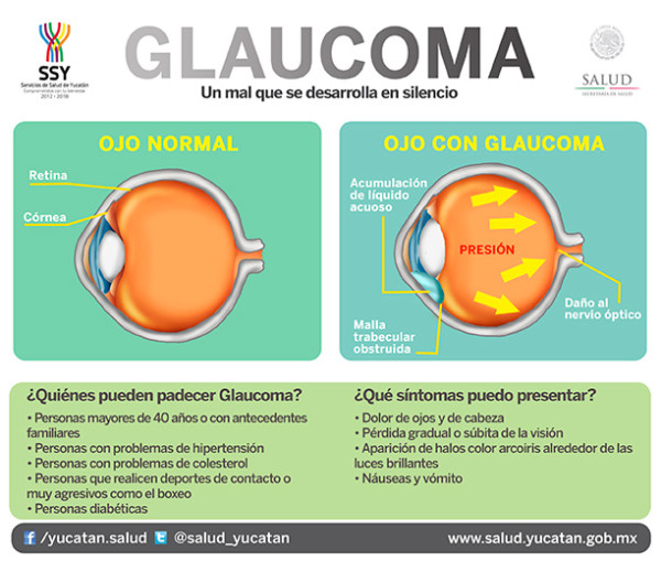 glaucomainfo